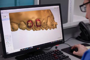 Dental 3D-Design