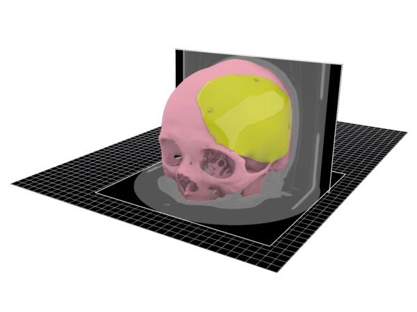 From medical images to cad models