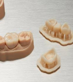 Material für 3d gedruckte kronen