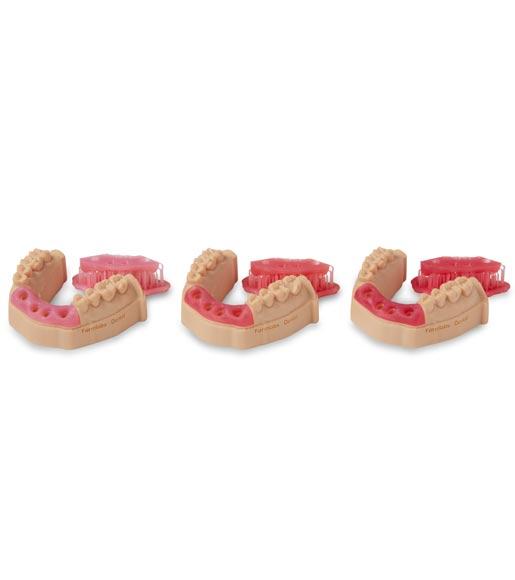 3D-Druck von Zahnfleisch-Masken