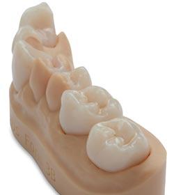 Zahnkronen Resin Formlabs